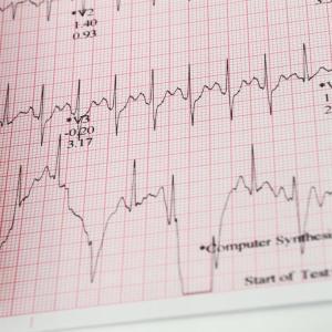 Tillbehör EKG