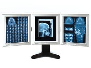 Tredelad skärm för röntgenbilder