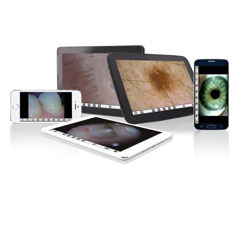 Videootoskop med PC-koppling